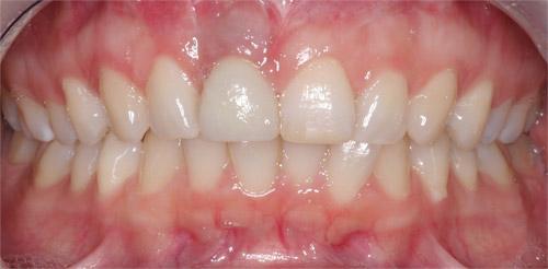 Précautions implants dentaires