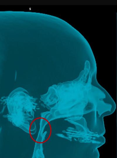 Chirurgie orthognatique - Indications fonctionnelles
