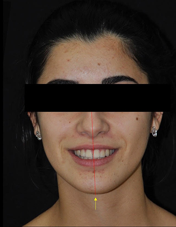 chirurgie orthognatique - indications morphologiques