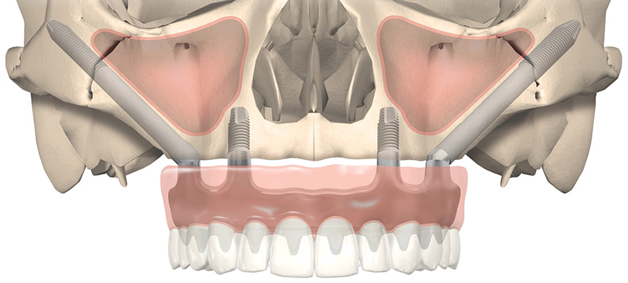 Implant zygomatique et prothèse immédiate