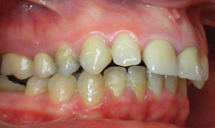 asymétrie maxillaire