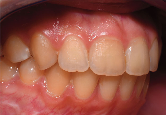 sourire gingival