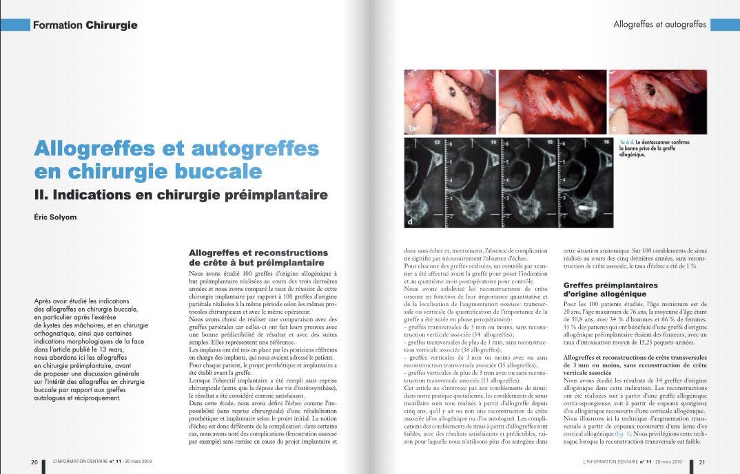 Allogreffes et autogreffes en chirurgie buccale